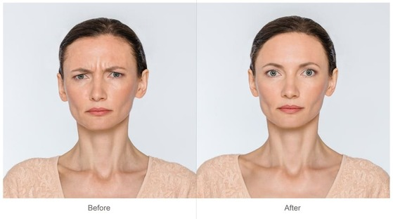 Botox Las Vegas Before and After Marielaina Perrone DDS